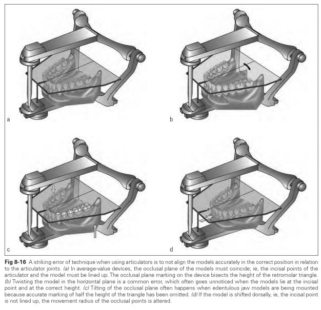 Errors of technique with average value articulators dental calibration keys are accessories for average value mounting in average value articulators fig 8 17 these accessories can be used to position the ccuart Images