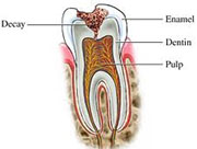 Types of caries ppt