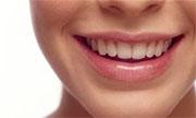 Kako nastanejo zobne ciste?