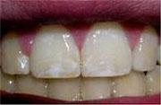 Dental fluorosis symptoms