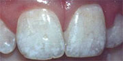 Treat dental fluorosis