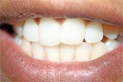 How to restore tooth enamel naturally?