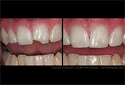 Restore teeth bone loss