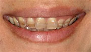Tetracycline teeth whitening