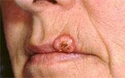 Keratoacanthoma images