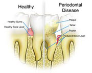 Dental Plaque and Gum Disease