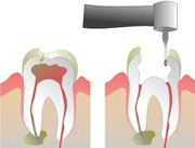 Removing root canal treated tooth