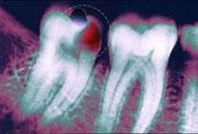 Tooth infections that spread