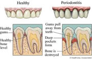 What is juvenile periodontitis?
