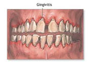 How to prevent gingivitis?