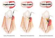 Periodontitis curable