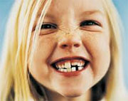 Melketenner første tenner