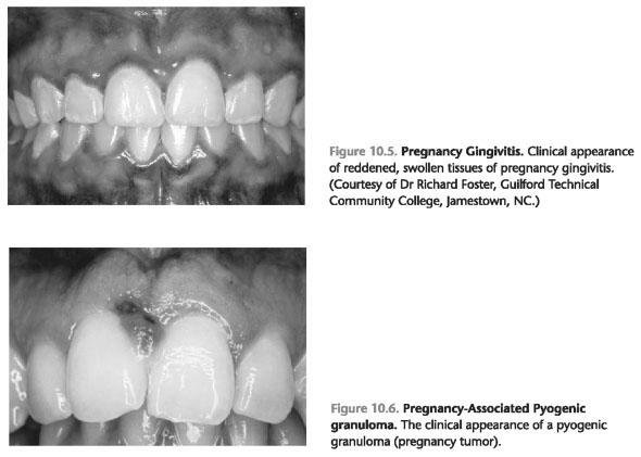 Pregnancy gingivitis cause