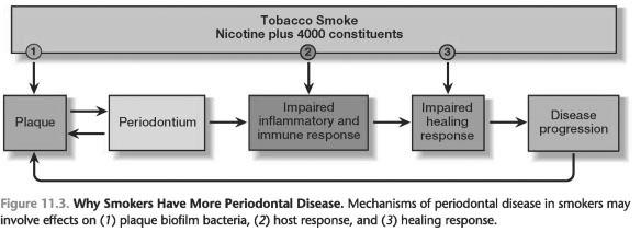 Periodontal disease in smokers