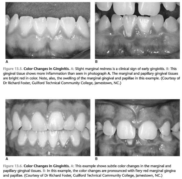 Clinical characteristics of gingivitis