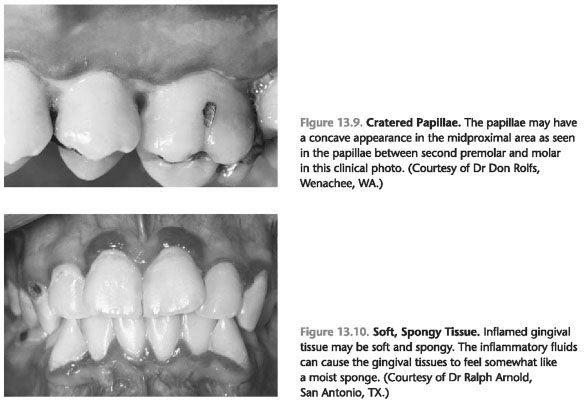 Describe the clinical characteristics of gingivitis