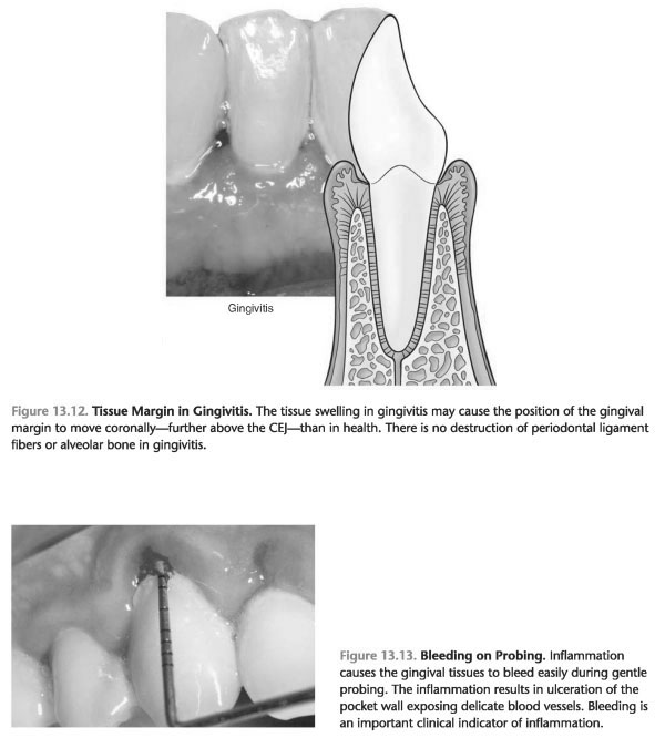 Gingival surface texture