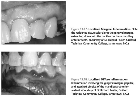 Gingival inflammation fever