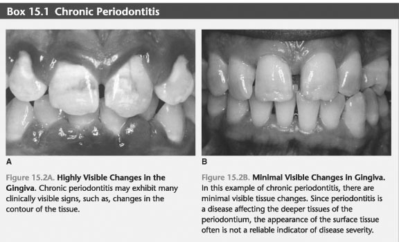 GENERAL CHARACTERISTICS OF CHRONIC PERIODONTITIS