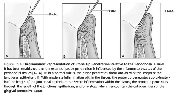 Characteristics of chronic periodontitis