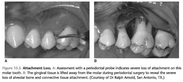 Characteristics hiv periodontitis