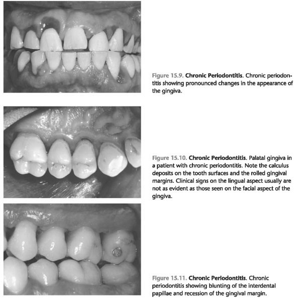 Early onset periodontitis in the united states of America