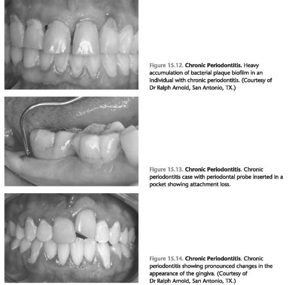 Early onset periodontitis treatment