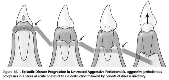 Characteristics of aggressive periodontitis