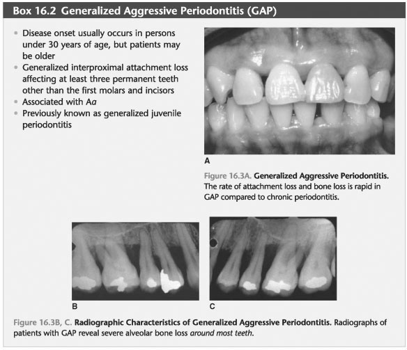 Generalized aggressive periodontitis primary teeth