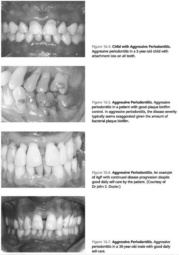 Generalized aggressive periodontitis definition