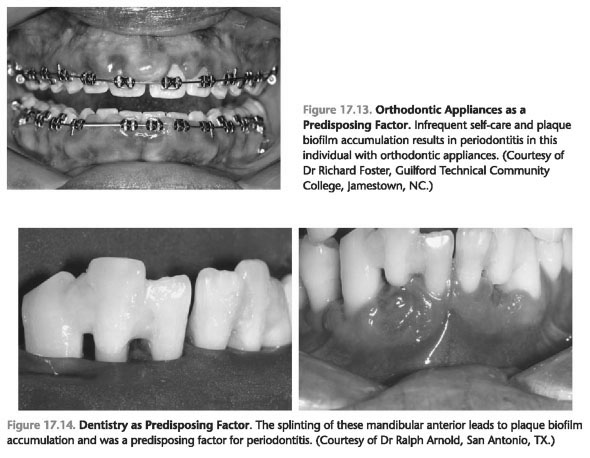 Growth factor periodontal
