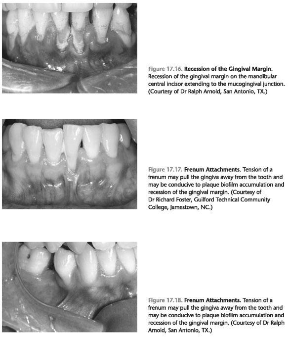 Mucogingival deformities