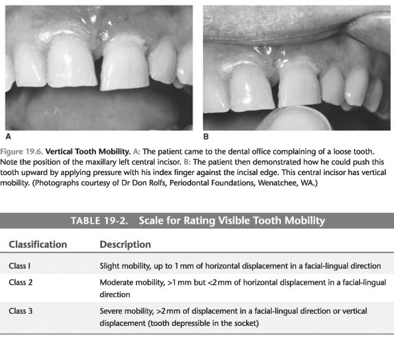 Tooth mobility and periodontal disease