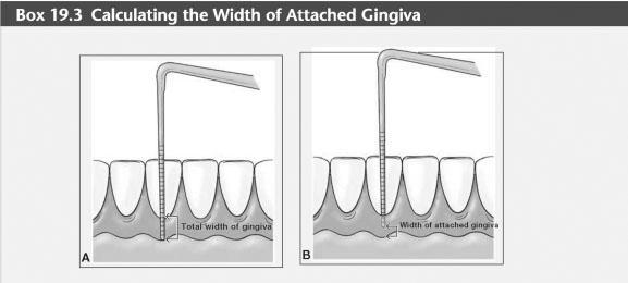 Attached gingiva keratinized
