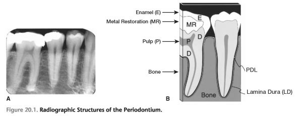 Radiographs periodontal
