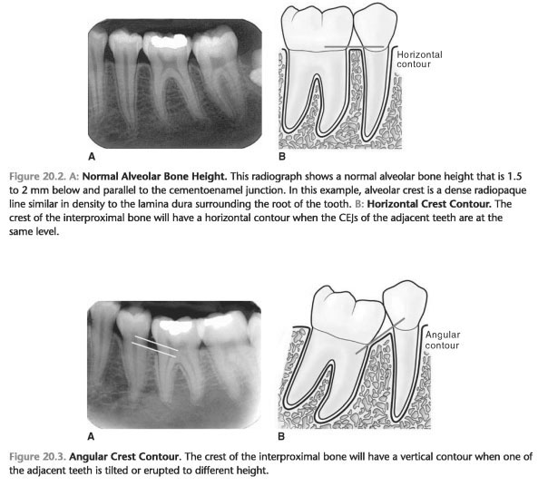 Interdental septum bone