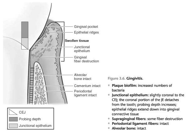 Gingival margin trimmer mesial and distal