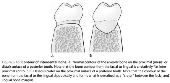 Bone defects at birth