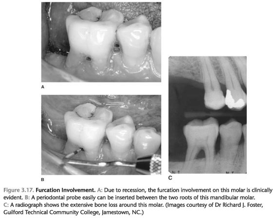 Periodontal disease bone loss treatment
