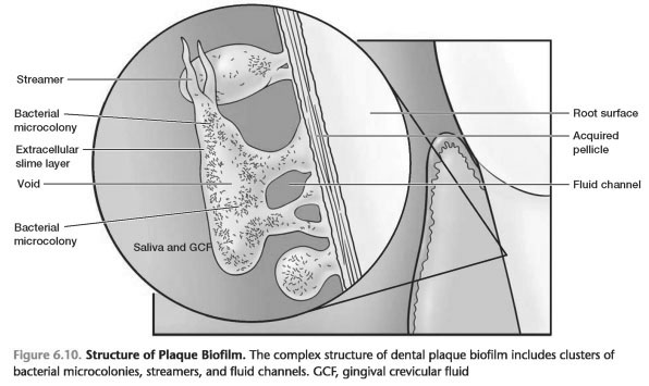 Dental plaque scaler