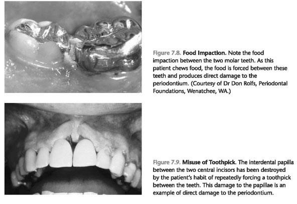 Risk factors periodontitis