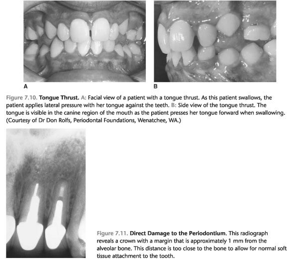 Tooth preparation for complete crowns