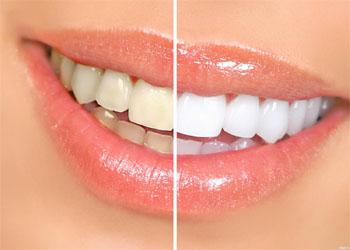 Hydrogen peroxide in dentistry