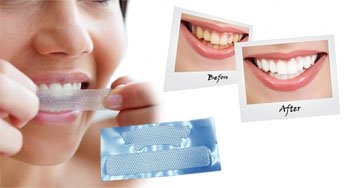 Teeth whitening tips at home