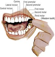 Tooth cavity remineralization