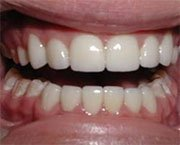 Neglected caries. What to do with this problem?