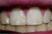 Dental fluorosis symptoms