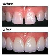 Gap between teeth lucky