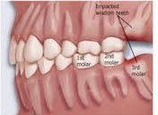 How much wisdom teeth removal without insurance?