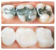 Tooth Filling